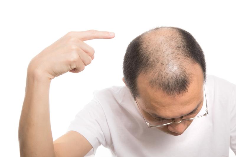 の 生える ズバリ どれ ランキング 剤 育毛 は